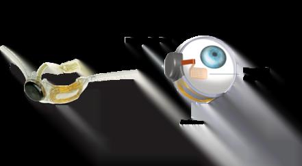 In arrivo il primo vero occhio bionico dall'America 1
