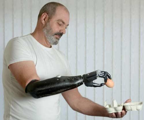 Finalmente gli amputati possono controllare gli arti artificiali con la loro mente! 1